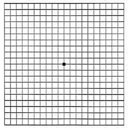 Amsler Grid Example