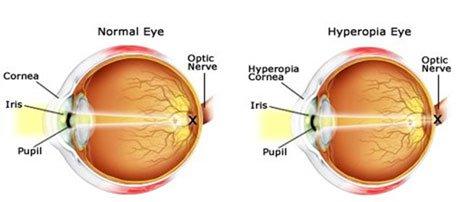 Eye Surgery Farsightedness