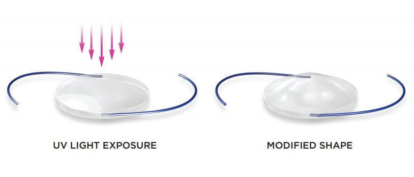 Light Adjustable Lens Changing Shape From UV Light Exposure