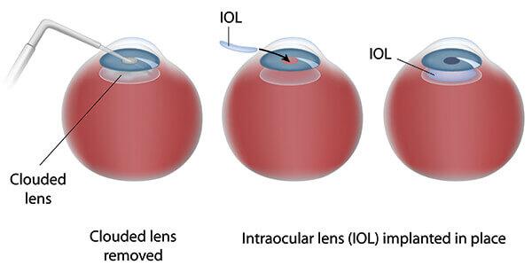 IOL Chart